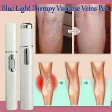 1pc Medical Blue Light Therapy Pen Varicose Veins Treatment Soft Scar Removal Treatment Scar Acne Just 7 Days
