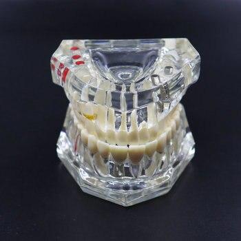 Dental Lab Materila Implant Teeth Model Dental Restoration Model Active Teeth Model Dentist Instrument For Medical Science 1pcs dental model teeth implant restoration bridge teaching study tooth medical science disease study dentist dentistry products