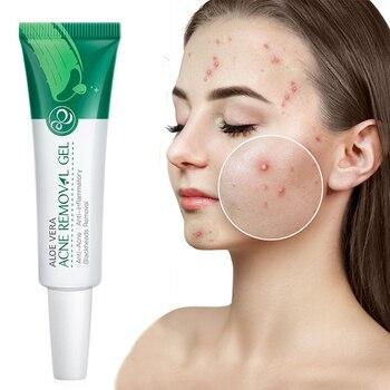 Aloe Acne Treatment Gel Face Cream Serum Anti Acne Scar Cream Shrink Pores Moisturizing Oil