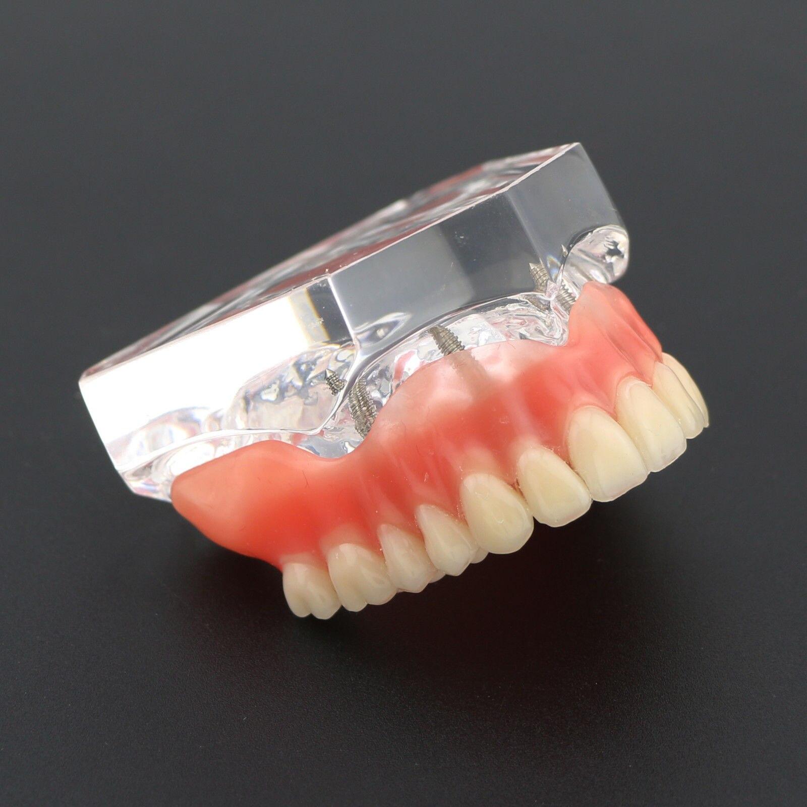 dental claro acrilico superior dentes modelo overdenture 04