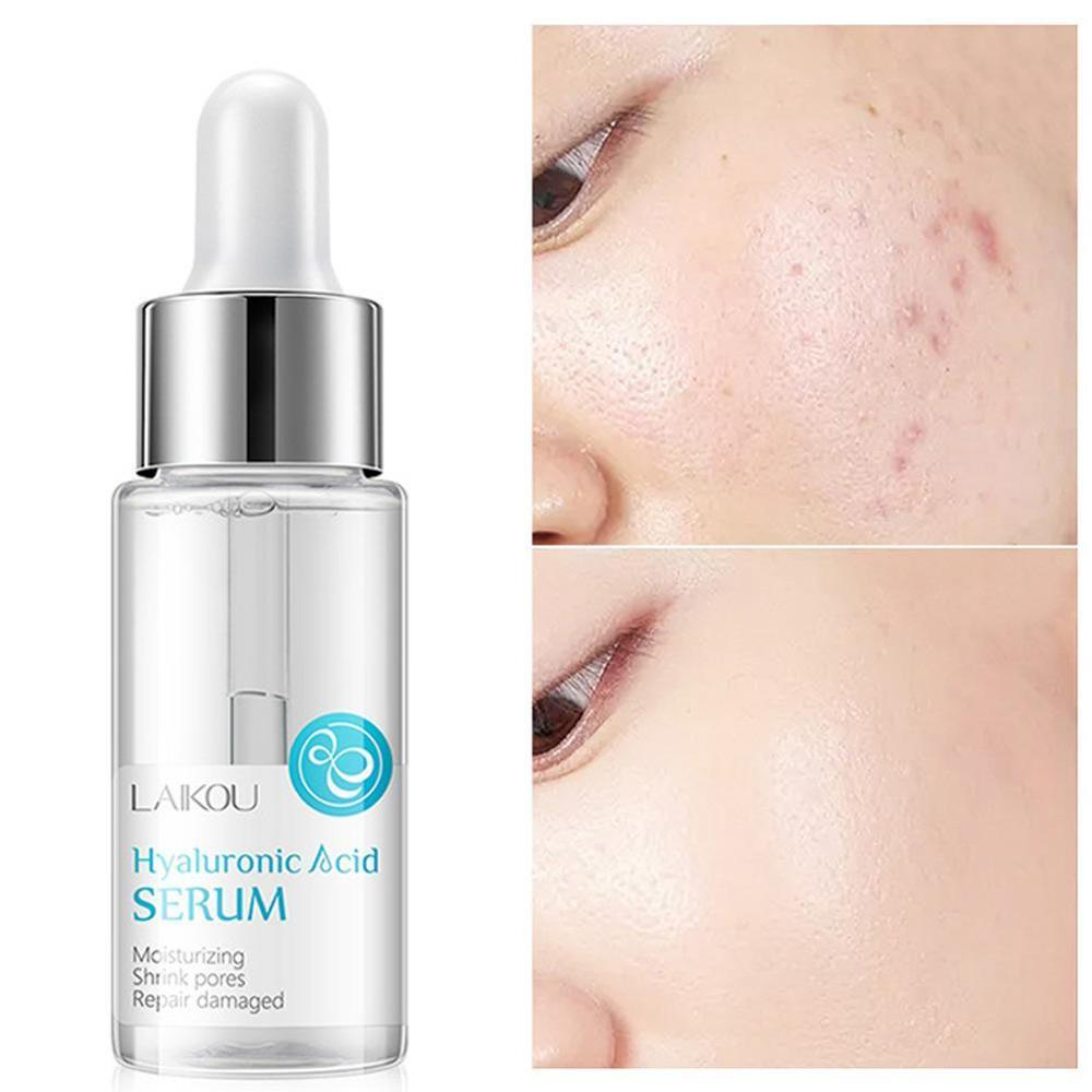Hyaluronic Acid Shrink Pore Face Serum Moisturizing Whitening Face Cream Dry Skin Care New