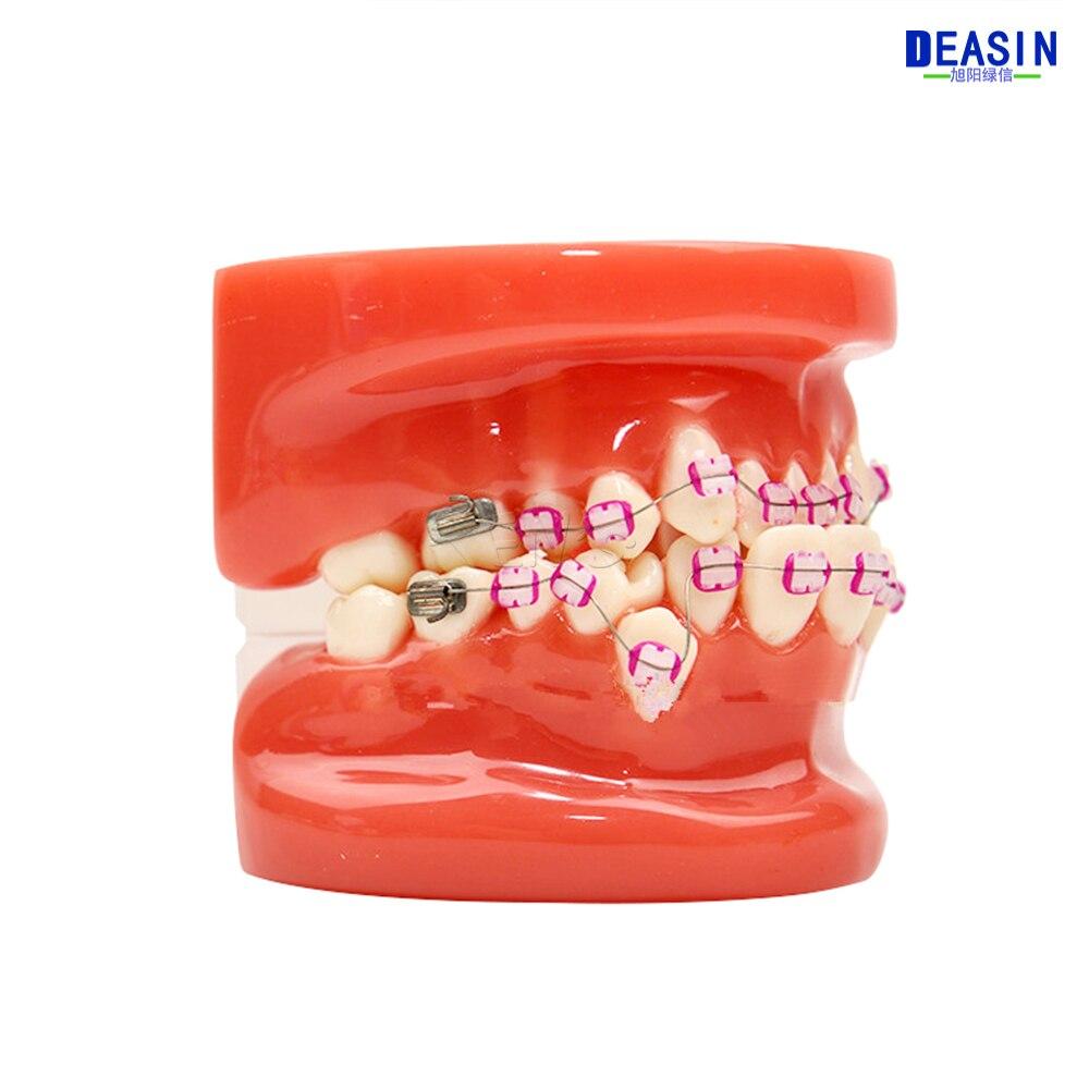 龅牙 (13)