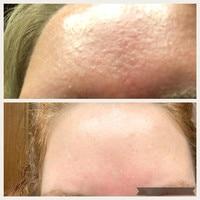 Face Peeling Solution 30ml AHA 30% + BHA 2% Ordinary to peel that dead top layer Make Up Anti Skin Care Serum Oil Balance Base 4