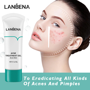 LANBENA Acne Treatment Cream Remove Blackheads Pimples Gel Face Clean Effective Fade Marks Scars Refreshing Repair Damaged Skin