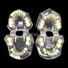 1 шт. зубная, Ортодонтическая модель с красочными кронштейнами модели неправильного прикуса обучающая модель Стоматологический материал инструменты для стоматолога