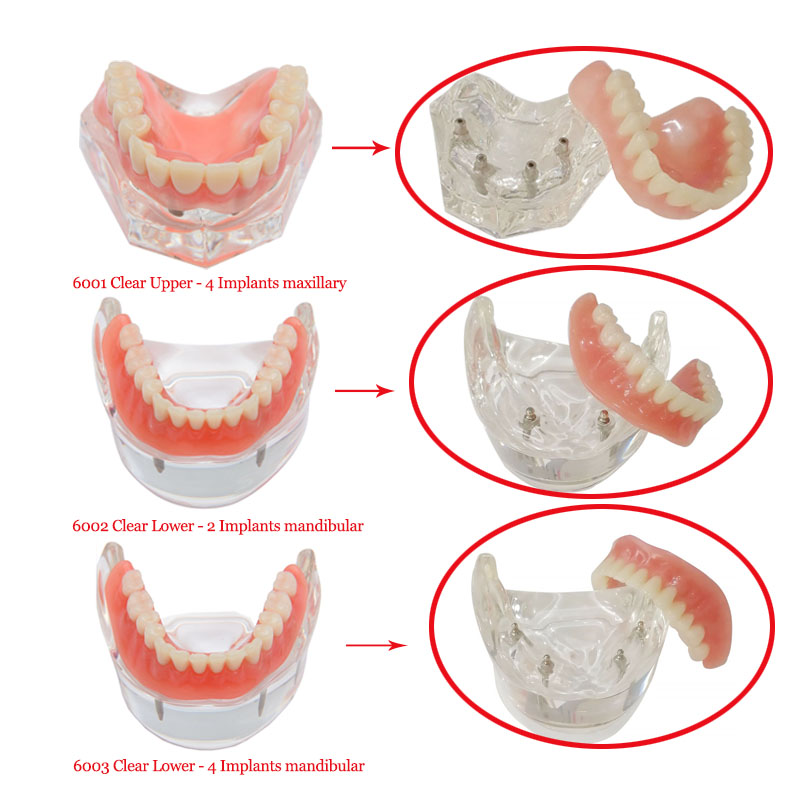 1 pcs dental Implant Teeth Model Overdenture Restoration Clear 6001 Upper 6003  Lower 6002  Lower  Implantsmaxillary /mandibular