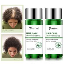 Hair Care Hair Growth Essential Oils Essence Hair Loss Liquid Health Care Beauty Dense Hair Growth Serum Restoration Essence cheap CN(Origin) 0 67FL OZ Hair Growth Essence