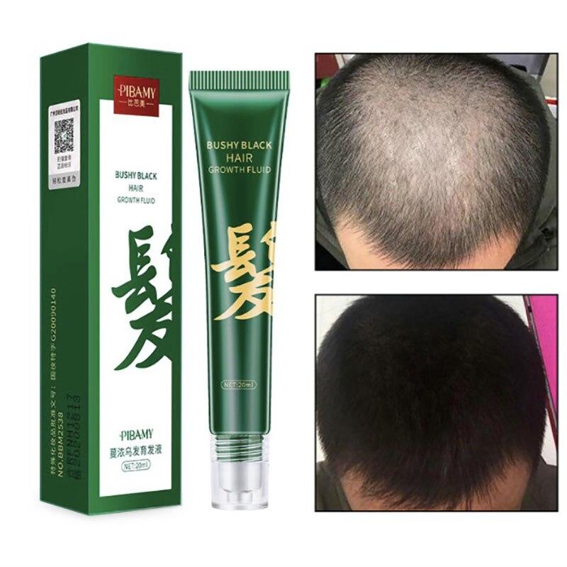 7 дней имбирь волосы Сыворотки штамповочного Cheveux разность от вычитания Cabello Capilar лечение выпадения волос Средства по уходу за Olejek сделать Wł...