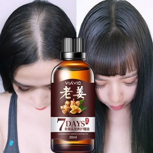 Hot sale Fast Hair Growth Dense Regrowth Ginger Serum Oil Anti Loss Treatment Essence Bin Wild Hair Growth Tools Hair Care 30ml(China)