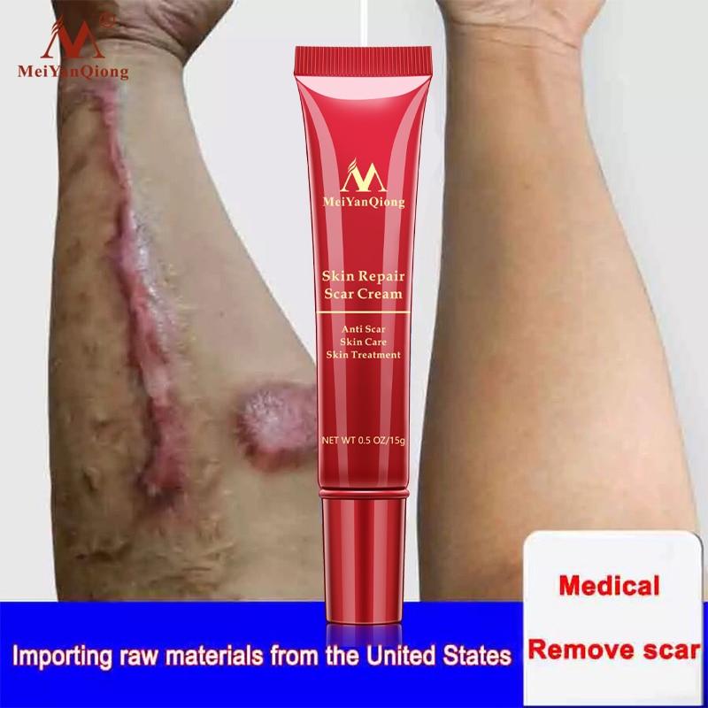 Remove Scar Cream Repair Burn Skin Desalination Surgical Scar Effectively Remove Melanin Deposition Restore Smooth Skin 15g