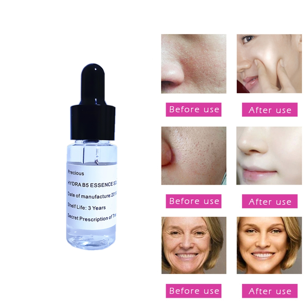 Fade Spots Freckles Skin Whitening Hyaluronic Acid Liquid Face Lift Blemish Serum Ampoules Anti-acne Rejuvenation Serum 15ml