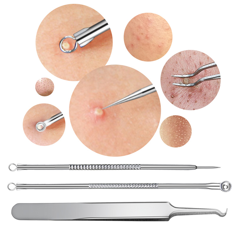 3 PCS Stainless Steel Blackhead Facial Acne Spotted Pimple Extractor Remover Needles Acne Tweezer Comedone Set For Face Cleaning