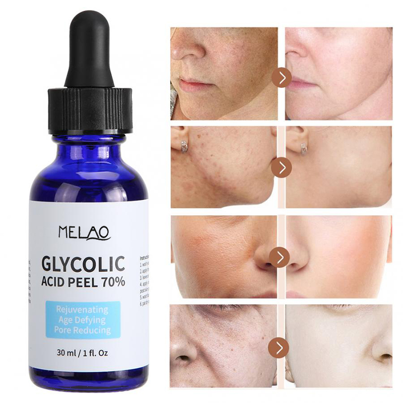 Glycolic Acid Peel Repair Solution Shrink Pores Brighten Skin Color Balance Water And Oil Improve Acne Skin Nourishing 30ml
