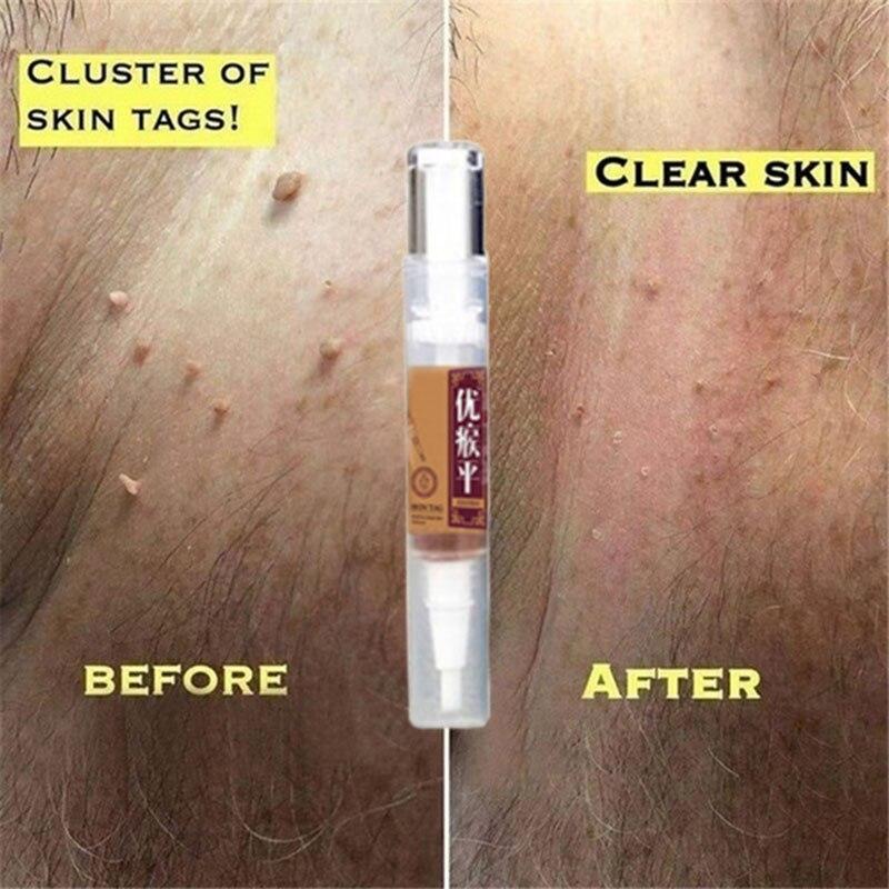Mole & Genital Wart Skin Remover  3