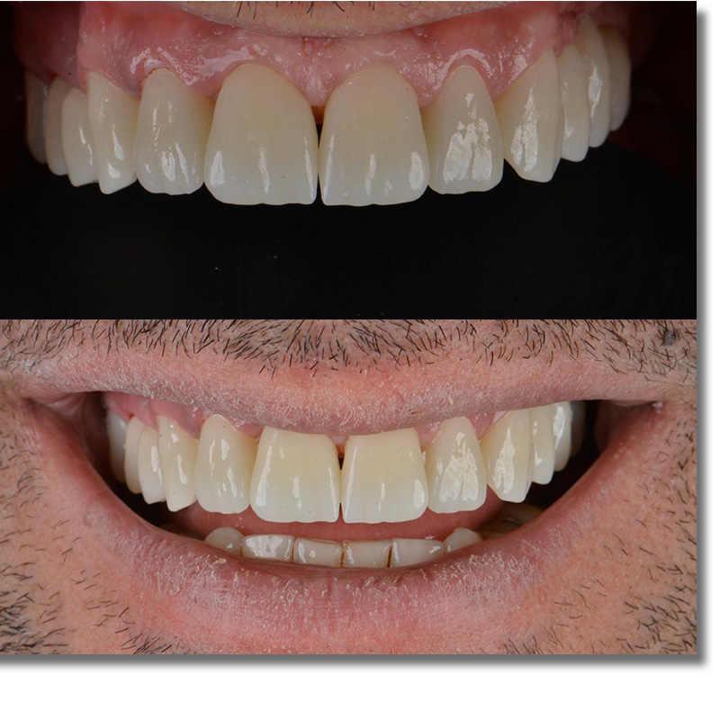 Beautyzir ST + kolor wstępnie zacieniony 98mm (grubość 16mm)-bloki stomatologiczne z cyrkoniami do cad cam laboratorium dentystyczne A1-D4