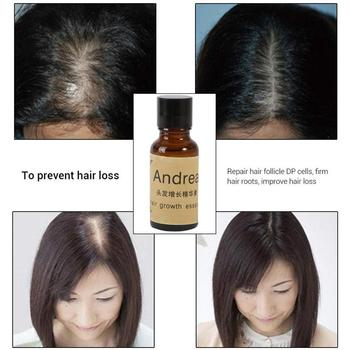 Hair Growth Serums Women Men Prevent Baldness Growing Restoration Essential Oil image