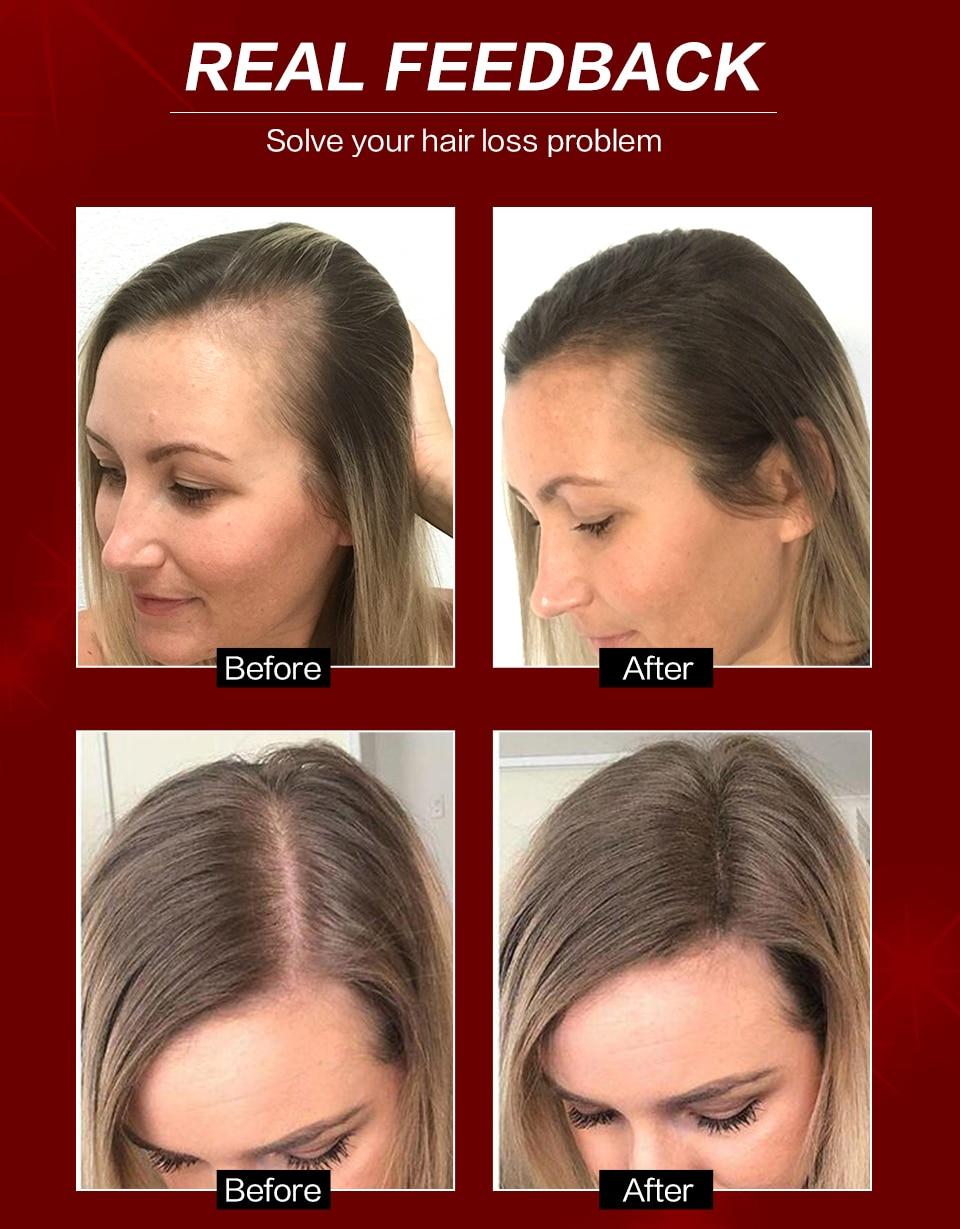 Anti soro da perda de cabelo do