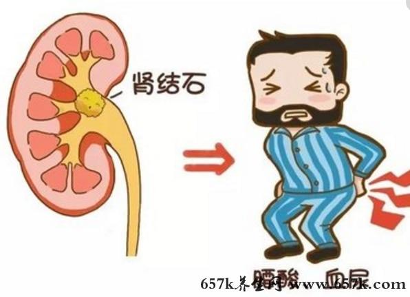 肾结石的原因 多喝水可缓解肾结石