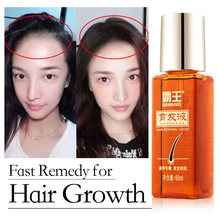 Масло для роста волос средство быстрого против выпадения лечения