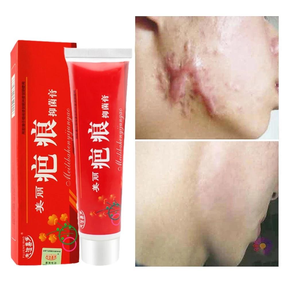 אקנה הסרת צלקת קרם פצעונים למתוח סימני פנים ג 'ל להסיר אקנה החלקת הלבנת לחות גוף טיפוח עור