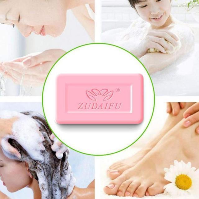 Zudaifu Sulfur Soap Skin Conditions Acne Psoriasis Seborrhea Eczema Anti Fungus Bath Whitening Soap Shampoo Skin Care TSLM1 3