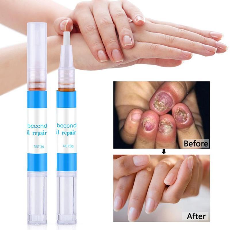 Onychomycosis Repair Solution Nail Fungus Treatment Oil Pen Nail Growth Anti Fungal Nail Infection Cuticle Remover Liquid 3ml
