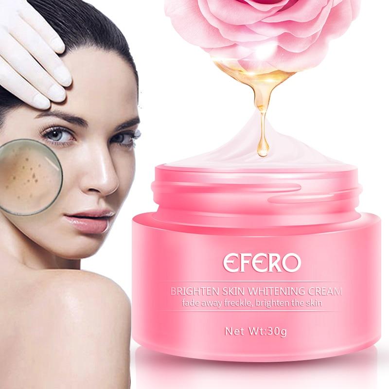 EFERO Remove Freckle Cream Skin Whitening Cream Remove Melasma Acne Spots Pigment Melanin Dark Spots Moisturizing Face Cream