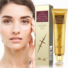 30g cicatriz de acné eliminación crema granos marcas Gel eliminar el acné suavizado blanqueamiento corporal hidratante cuidado de la piel Aichun