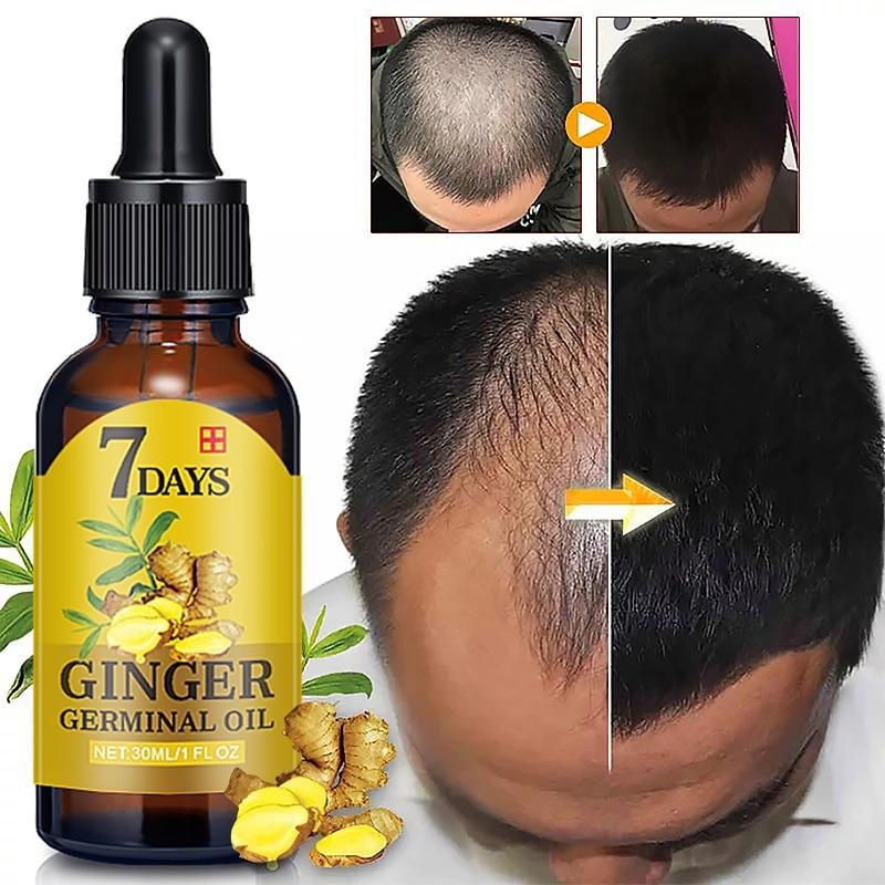 7 дней, имбирь, сывороточная эссенция, Лечение выпадения масла, лечение роста волос, защита от выпадения волос, алопеция, поврежденная жидкос...