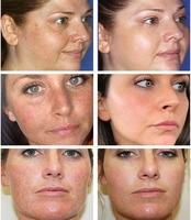 Aichun Whitening Freckle Cream Remove Melasma Acne Spot Lighten Dark Spots Pigment Melanin Hydration Moisturizing Face Care 30ml 2