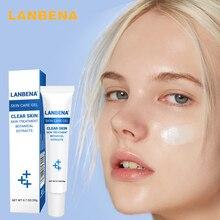 LANBENA Acne Gel Essence Anti-Acne  Moisturizing Gel cream Remove Acne Spots Oil Control Shrink Pores oily  Skin Care 30ml
