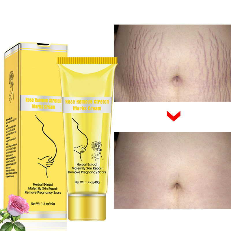 Cream Adaptation Removal Rose-Release-Cream Gravidarum-Treatment Fat Scar 40g Stretch-Marks
