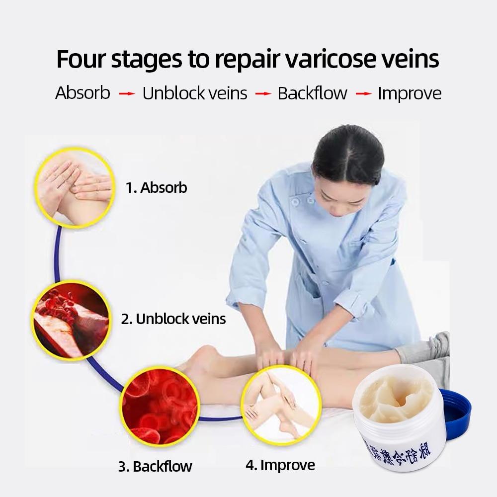 Herbal Medicine For Treating Varicose Vasculitis Phlebitis Spider Legs Veins Pain Massage Cream Treat Varicose Vein Ointment 5