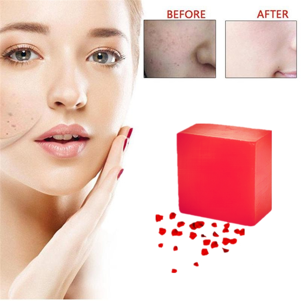 100% Rose Extract Handmade Soap Whitening Moisturizing Wash Base Removal Pimple Pores Acne Treatment Face Neck Back Skin Care