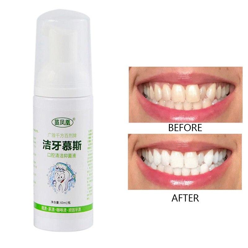 Зубная паста мусс для удаления неприятного дыхания чистка зубов удаление от зубных пятен пена зубная паста Чистка полости рта