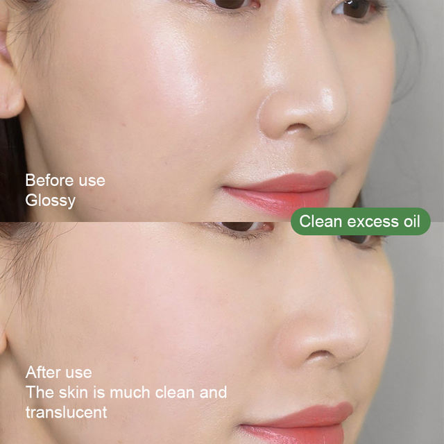 Solid Acne Removal Mask Green Tea Oil Control Moisturizing Cleansing Mask