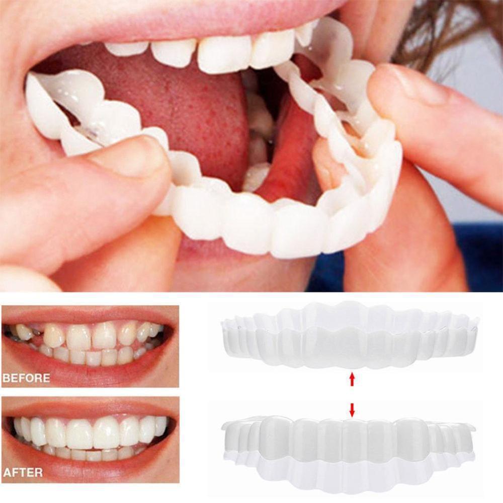 1 Set Smile Denture Fit Flex Cosmetic Teeth Comfortable Veneer Cover Teeth Whitening Snap On Smile Teeth Cosmetic Denture