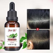 30 мл Быстрый мощный рост волос продукты для выпадения волос Эфирное Масло жидкое лечение Предотвращение выпадения волос уход за волосами