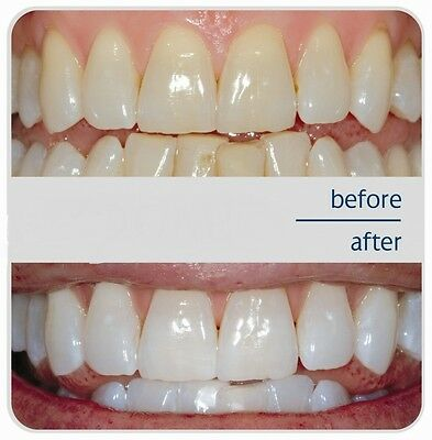 Natural White 5 Minute TOOTH WHITENING SYSTEM Kit Gel and Tray