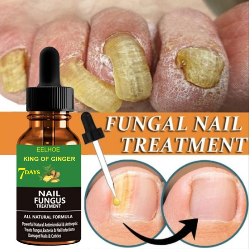 Эссенция для восстановления ногтей от грибков 20/30/50 мл, сыворотка для ухода, лечения грибка ногтей на ногах, гель для удаления паронихии и он...