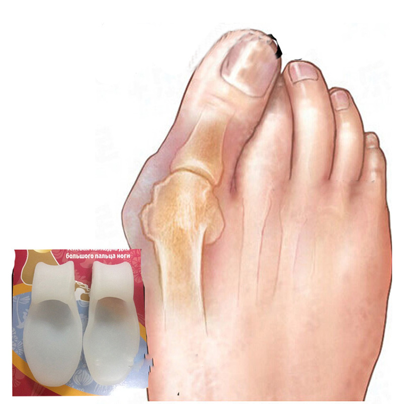 2pcs-Silicone-Gel-Foot-Fingers-Toe-Separator-Thumb-Valgus-Protector-Bunion-Adjuster-Hallux-Valgus-Pro-Guard
