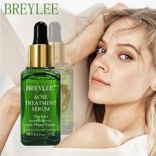 Breylee chá árvore acne tratamento rosto soro reduzir cicatrizes acne essência controle de óleo hidratante clarear os poros encolher beleza líquido