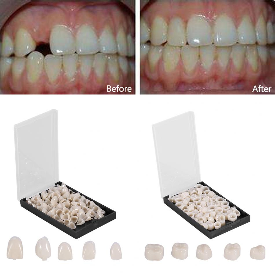 50Pcs/Box Dental Crowns Teeth Whitening Resin Porcelain Materials Temporary Teeth Realistic Oral Care Posterior Molar Crown(China)