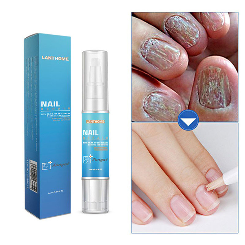 Remover Cuticle Oil Nail Oil Pen Herb Fungal Nail Repair Pen Bright Cream Disinfection Toe Nail Fungus Treatment Foot Feet Care