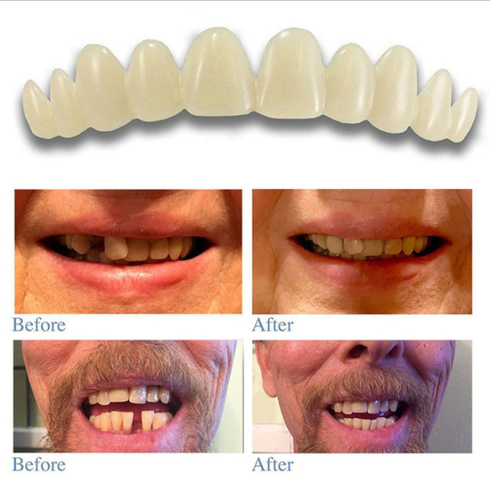 1 New Set Comfortable Snap On Men Women Tooth Perfect Smile Comfort Fit Flex Teeth Fits Whitening Smile False Teeth Cover