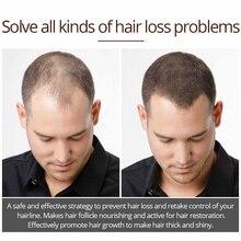 Эссенция для роста волос эфирное масло жидкий спрей питает яркие густые корни предотвращает выпадение волос анти-волосы для мужчин и женщин 30 мл