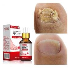 Tratamento fúngico do prego pés cuidados essência unha pé clareamento dedo do pé unha fungo remoção gel anti infecção paronychia onychomycosis