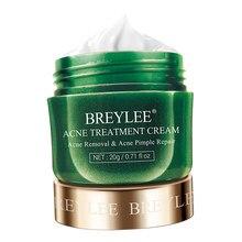 Extrato facial da árvore do chá da remoção da espinha do creme 20g do tratamento da acne de breylee