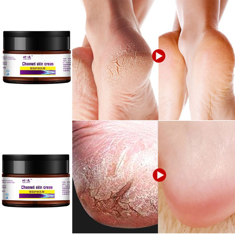 30g Hand Foot Chapped Skin Cream Herbal Heel Anti-Drying Crack Nourish Ointment T4MB
