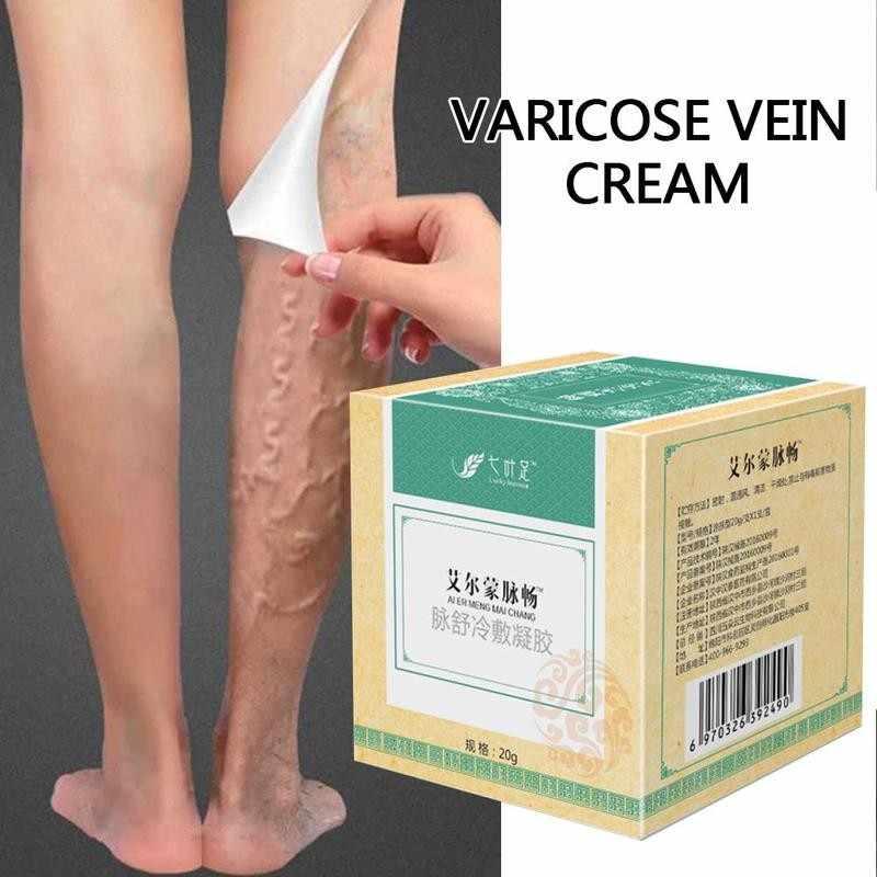 medical medical varicose